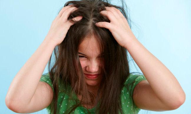 1469859824_head-lice